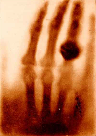 first-xray.png